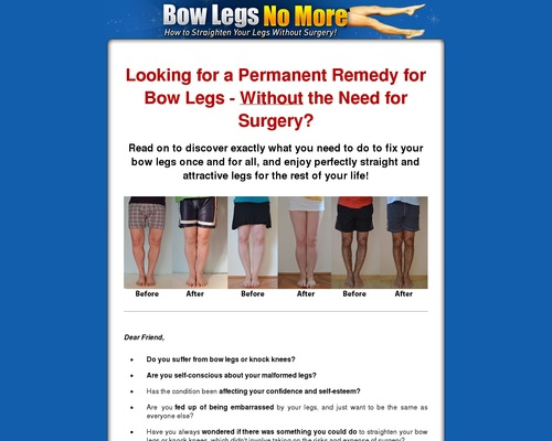 Bow Legs No More – Hot For Year 2018!